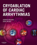Cryoablation of Cardiac Arrhythmias, by Audrius Bredikis, MD and David Wilber, MD, is the first comprehensive text devoted solely to the effective and appropriate use of cryoablation in the management of cardiac arrhythmias