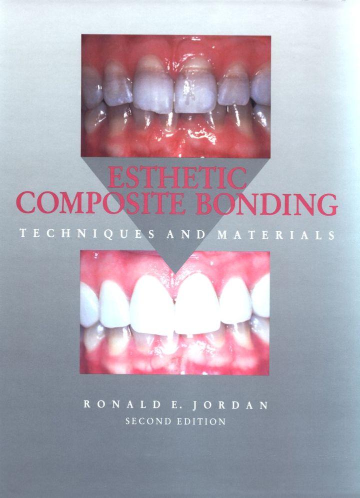 Esthetic Composite Bonding