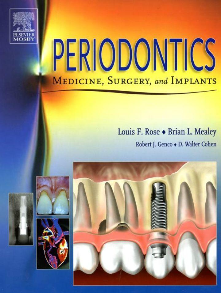 Periodontics: Medicine, Surgery and Implants