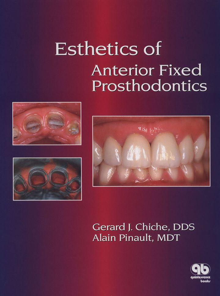 Esthetics of Anterior Fixed Prosthodontics: