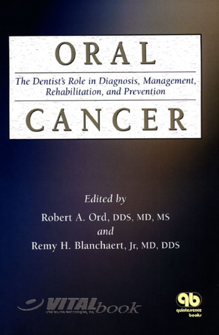 Oral Cancer: The Dentist's Role in Diagnosis, Management, Rehabilitation and Prevention