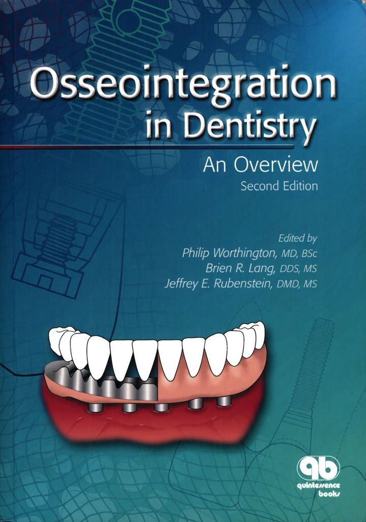 Osseointegration in Dentistry: An Overview