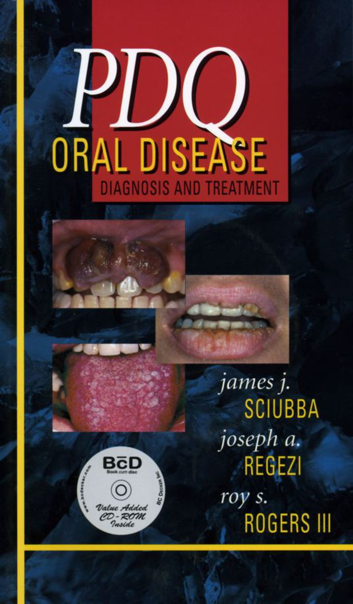 PDQ Oral Disease: Diagnosis and Treatment