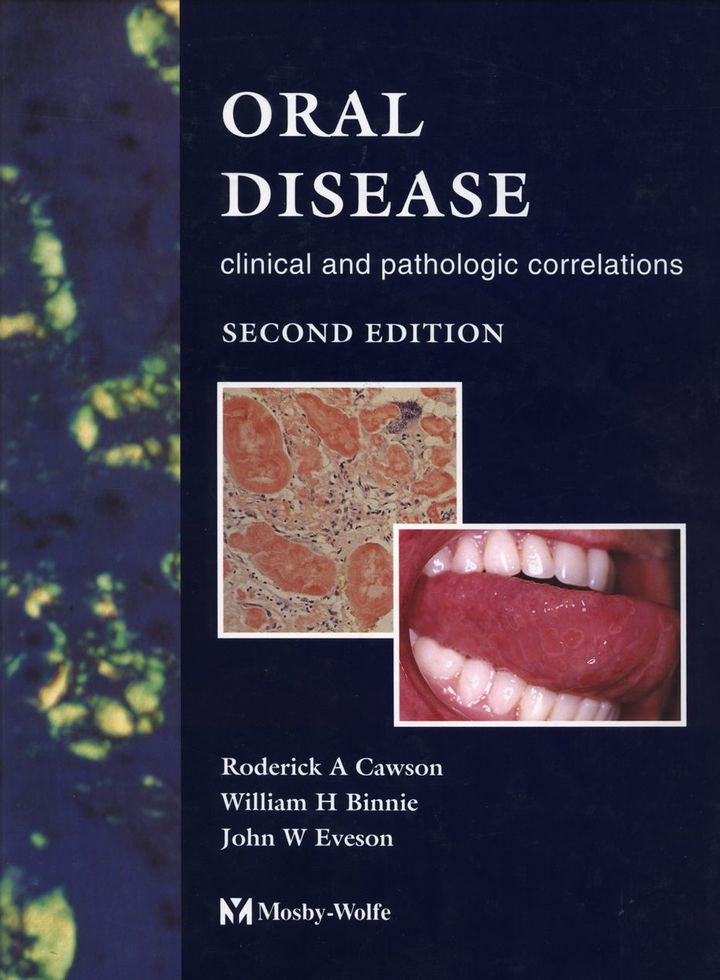 Color Atlas of Oral Disease: Clinical and Pathologic Correlations