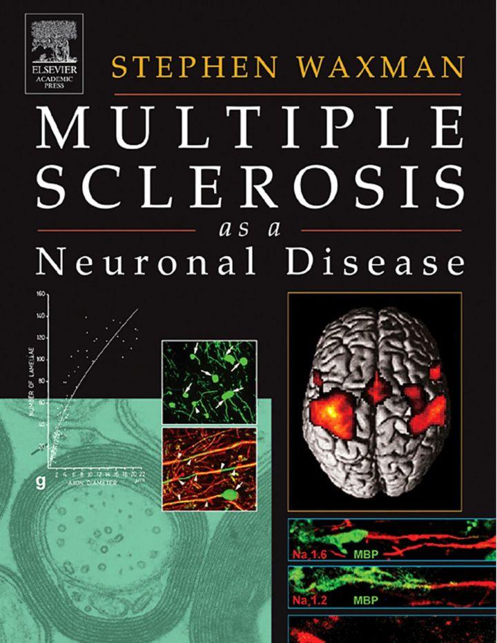 Multiple Sclerosis As A Neuronal Disease
