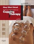 Traditional Chinese Medicine: Cupping Therapy 9780443102660