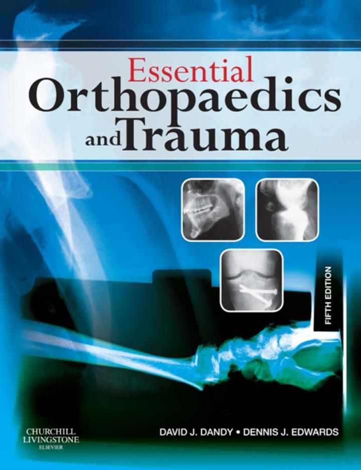 Essential Orthopaedics and Trauma E-Book