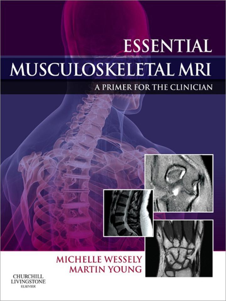 Essential Musculoskeletal MRI E-Book