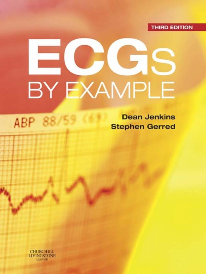ECGs by Example E-Book