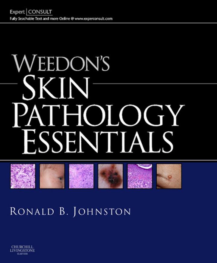 Weedon's Skin Pathology Essentials E-Book