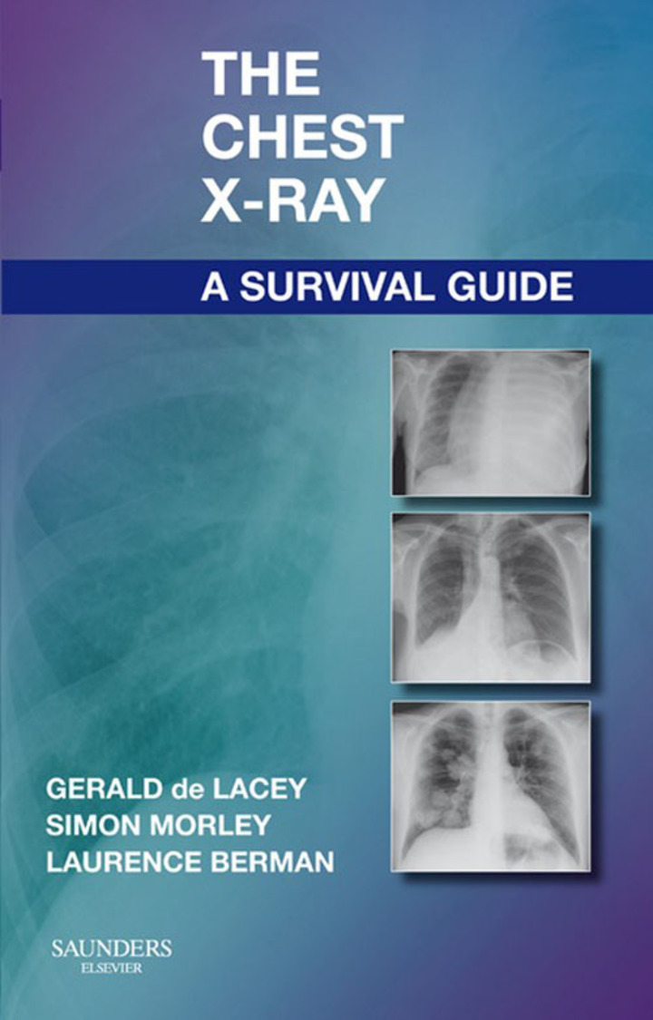 The Chest X-Ray: A Survival Guide E-Book