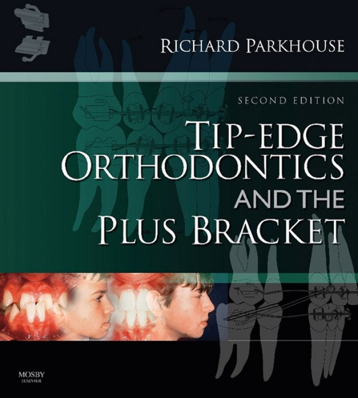 Tip-Edge Orthodontics and the Plus Bracket E-Book