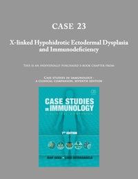 Case 23- X-linked Hypohidrotic Ectodermal Dysplasia and Immunodeficiency  (Case Studies in Immunology)