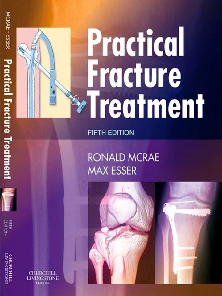 Practical Fracture Treatment E-Book