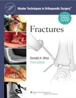 """""""Fractures"""" (9781469827995)"""