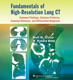 """""""Fundamentals of High-Resolution Lung CT: Common Findings, Common Patterns, Common Diseases, and Differential Diagnosis"""" (9781469834016)"""