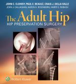 """The Adult Hip"" (9781469887050)"