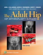 """""""The Adult Hip"""" (9781496318480)"""