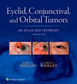"""""""Eyelid, Conjunctival, and Orbital Tumors: An Atlas and Textbook"""" (9781496326546)"""