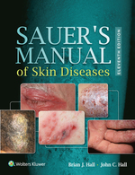 """Sauer's Manual of Skin Diseases"" (9781496383235)"