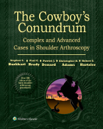 """The Cowboy's Conundrum: Complex and Advanced Cases in Shoulder Arthroscopy"" (9781496387318)"