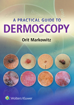 """A Practical Guide to Dermoscopy"" (9781496388803)"