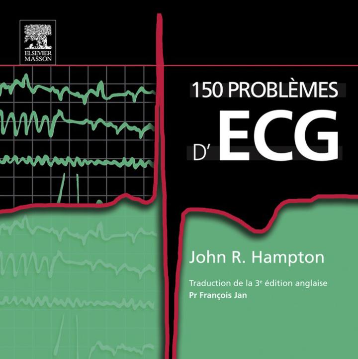 150 problèmes d'ECG