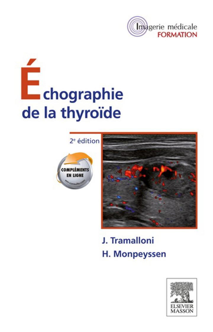 Échographie de la thyroïde