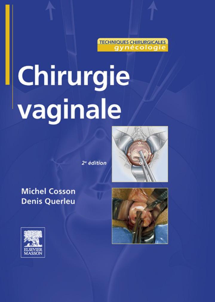 Chirurgie vaginale