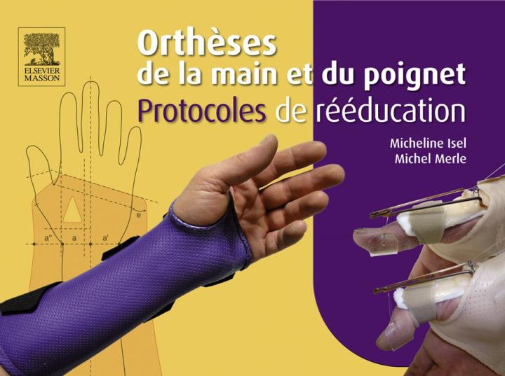 Orthèses de la main et du poignet. Protocoles de rééducation