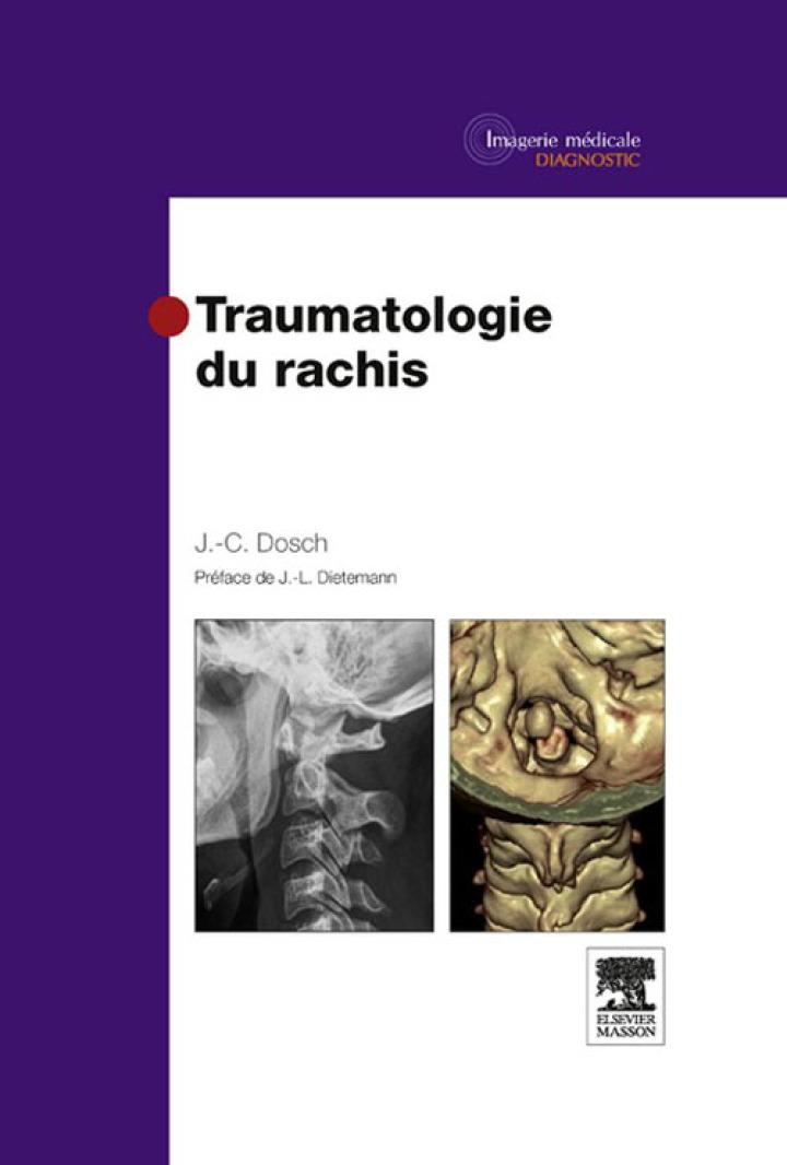 Traumatologie du rachis
