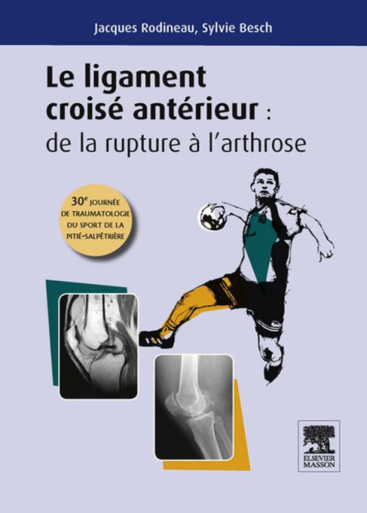 Le ligament croisé antérieur : de la rupture à l'arthrose