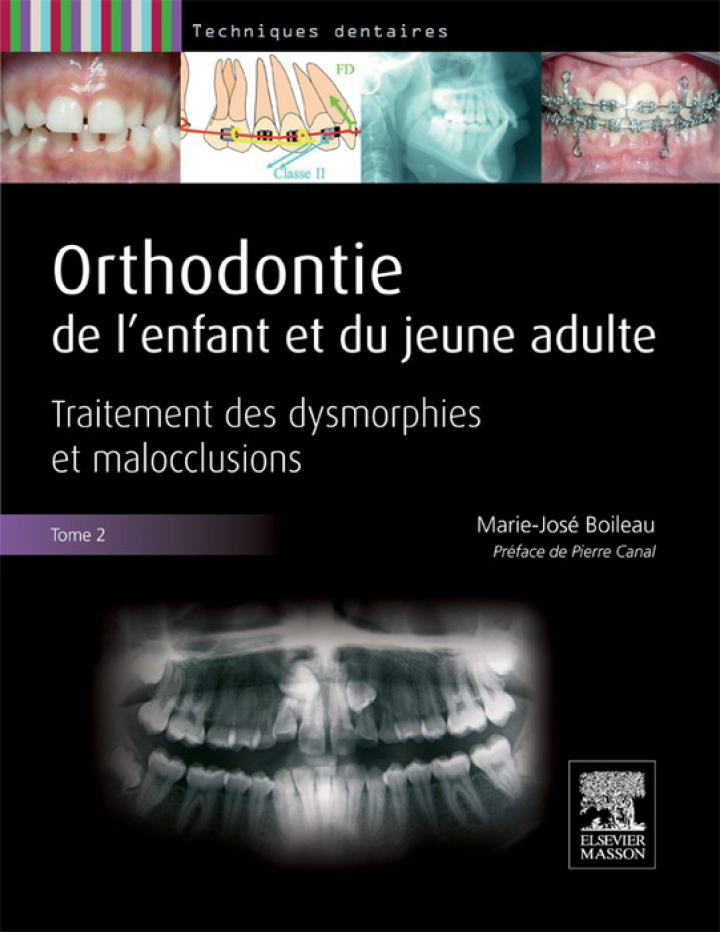 Orthodontie de l'enfant et du jeune adulte -Tome 2