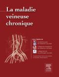 La maladie veineuse chronique 9782294745508