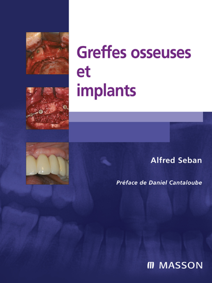 Greffes osseuses et implants