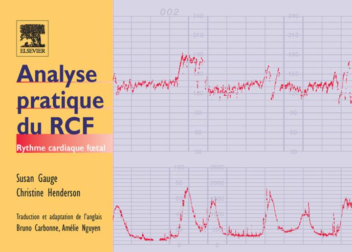 Analyse pratique du RCF