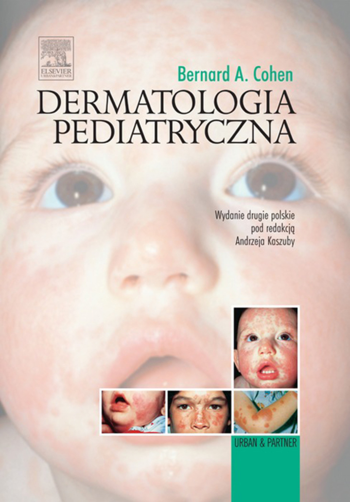 Dermatologia pediatryczna