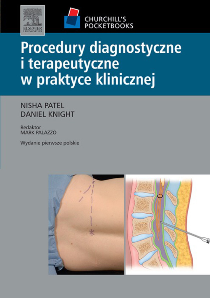 Procedury diagnostyczne i terapeutyczne w praktyce klinicznej. Seria Churchill's Pocketbooks