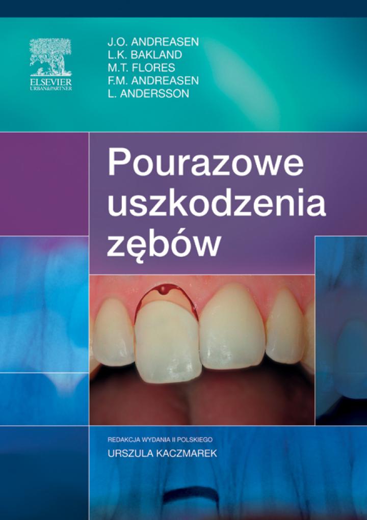 Pourazowe uszkodzenia zębów, wyd. II