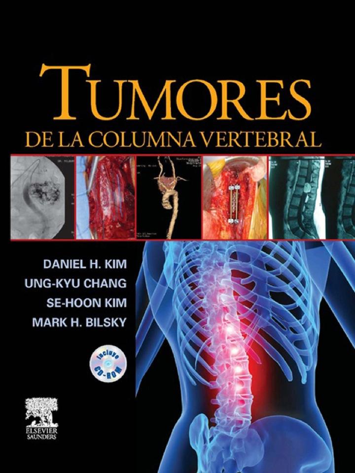 Tumores de la columna vertebral