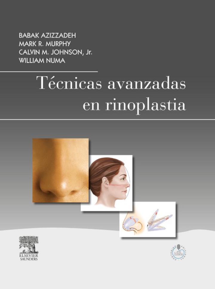Técnicas avanzadas en rinoplastia